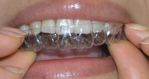 Invisalign-off-on-300x225
